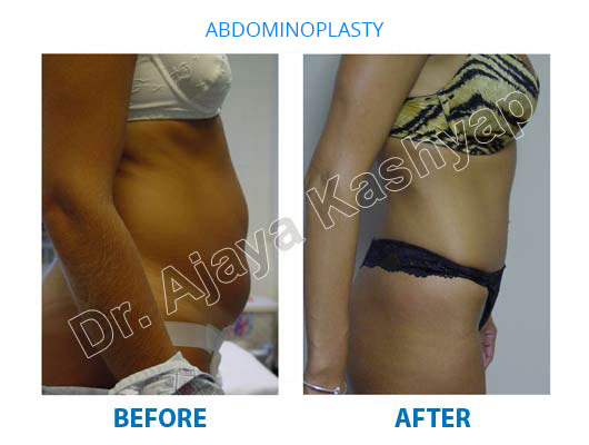tummy tuck surgeon in india