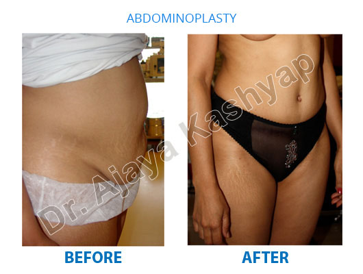 tummy tuck surgery cost in india
