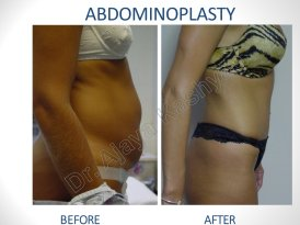 Best Abdominoplasty Surgery